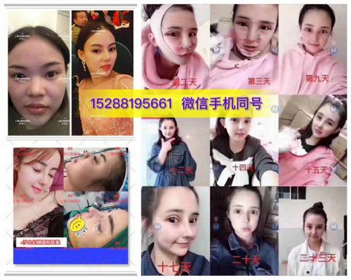 上海幻颜国际哪个专家鼻综合做的好|怎么联系他