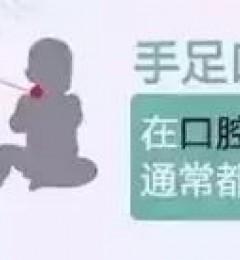 乃捷尔提示:妈妈要了解手足口病和疱疹性咽颊炎
