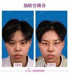 天津河东美莱医学美容医院有限公司怎么样 重塑美丽从我做起