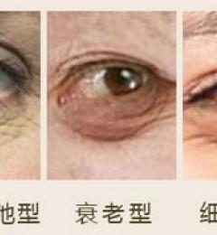 深圳军科整形刘月更 医术如何,好整以形,容美于心