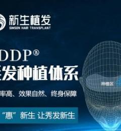福州新生植发TDDP植发技术六大优势保障植发效果
