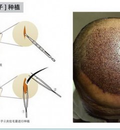 北京科发源为你科普最新植发技术:微针植发