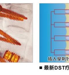 DST(Discseel™)再生治疗法:病变椎间盘的救命之星