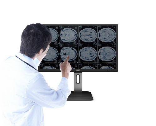 AOC商用 |精准医疗,从精准诊断开始