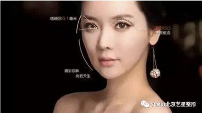 一双眼睛拯救一张脸,北京艺星整形效果好不好