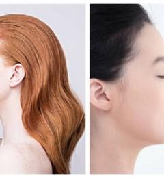 肋软骨塑造混血小翘鼻综合 鼻翼鼻尖要先解后构