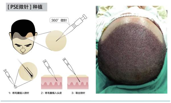 上海植发哪个医院好?