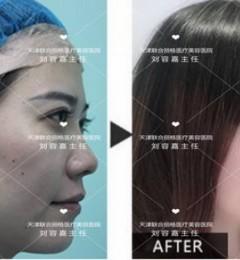 天津联合丽格刘容嘉萌芽仿生式鼻综合术技术很赞医院正规