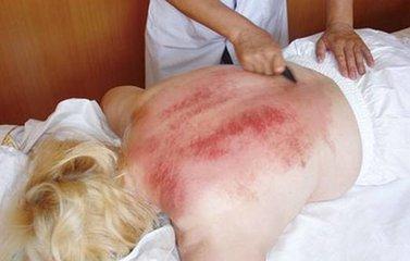 刮痧后背部一个个红印 会不会伤及皮肤?