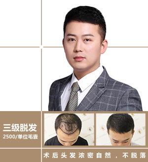 植发到底靠不靠谱?深圳新生植发发友真实案例告诉你