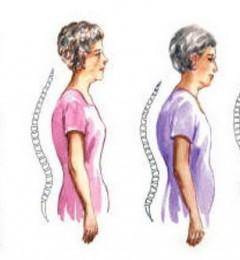 65岁以上女性为什么要做骨质疏松检查?