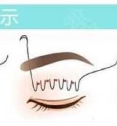 北京伊美尔双眼皮价格