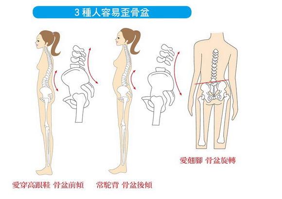经常腰酸背又痛 全因坏习惯导致骨盆歪
