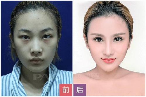 """长沙鹏爱医疗美容医院重点项目 """"人文医疗""""开启特色服务"""
