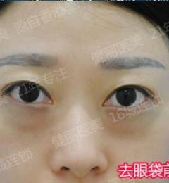 天津紫洁整形去眼袋效果好吗? 容颜重塑,焕发光彩