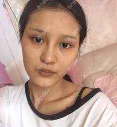 主播在深圳恩吉娜医疗美容医院自体脂肪全脸填充的变美日记