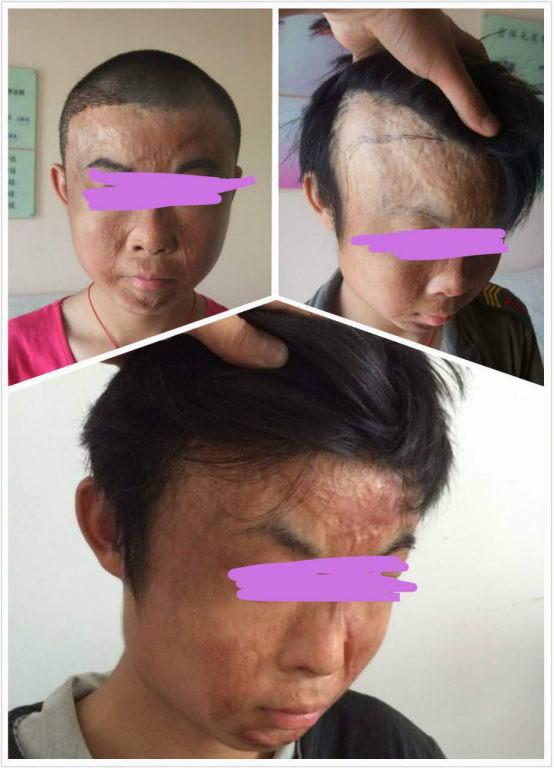 疤痕种植,斑秃种植,毛发移植,眉毛种植,硬皮病种植快到河南省卫辉来!
