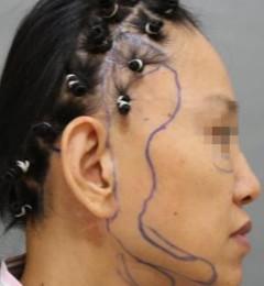 面部年轻化之――切口设计有学问:鬓角切口