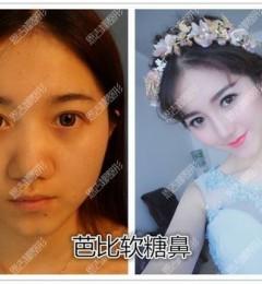 深圳恩吉娜医疗美容医院张峰:单纯隆鼻能让人变漂亮吗