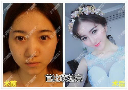 深圳恩吉娜医疗美容医院张峰:单纯隆鼻能让人变漂亮吗?