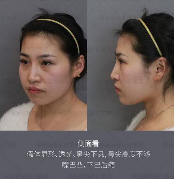 北京玻尿酸隆鼻会不会变形 米扬丽格整形定制您的美