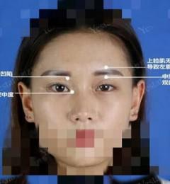 北京艺星整形做双眼皮效果?要手术仙女笑纳