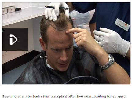 20岁就秃头?专家建议不宜过早植发