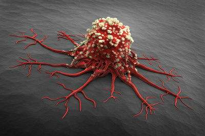 NK/T细胞淋巴瘤复发还有救吗