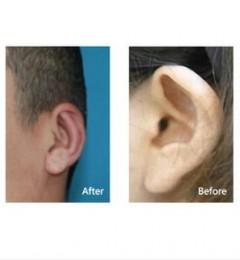 【重庆美仑美奂专家解析】杯状耳的四种矫正方式
