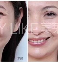 武汉美莱是正规整形医院吗 打造科技美容护肤行业