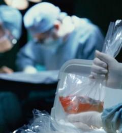接受器官移植不得不审视的健康风险