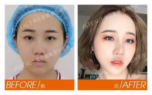 我适合哪种隆鼻方式?重庆美仑美奂专家为你解析隆鼻手术材料