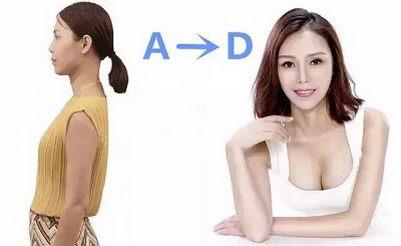 天津美莱隆胸技术怎么样 品质整形让美丽更专业