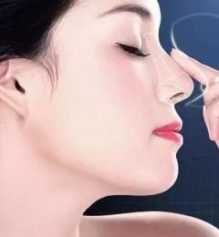 上海喜美隆鼻贵吗 隆鼻后不满意可以取出假体吗