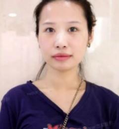 男票不同意她到北京艺星割双眼皮?竟时怕她变美不要他