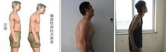 北京开阳中医院怎么样 王绍军专家告诉你强直性脊柱炎并不可怕