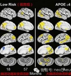 北京国仁医院特邀会诊专家徐俊教授:高危AD个体的早期MRI诊断新进展