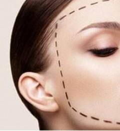 上海沪西医院正规吗?改脸型手术效果怎么样