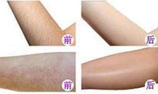 上海沪西整形医院好吗?激光脱毛,让肌肤滑丽一夏
