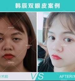 不信请看图,武汉韩辰专业医美为每一位求美者定制专属美丽