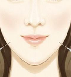 永州瑞澜医疗美容医院好不好?瘦脸针注射几次才稳定效果?