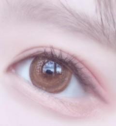 大连新华美天眼整形王众,给你天生般的双眼皮