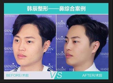武汉韩辰专业品质,从鼻尖开启魅力人生