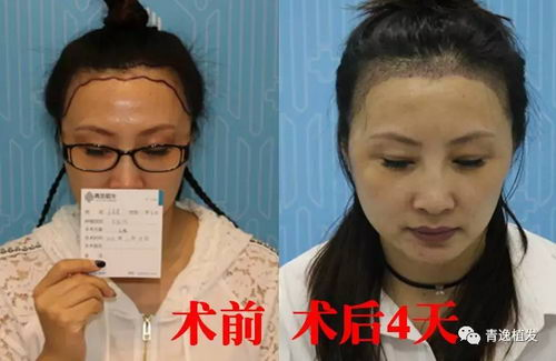 青逸植发NHT不剃发植发技术 华南首家行业标杆技术巅峰先进医院