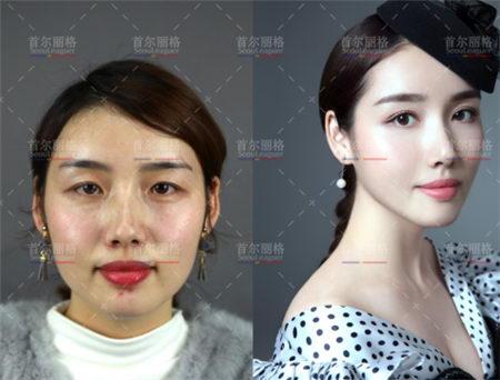 上海首尔丽格洪性范院长下颌角手术怎么样?迎接另一种人生