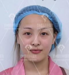 沈阳杏林整形效果好吗,同样是做双眼皮,怎么你的就那么丑?