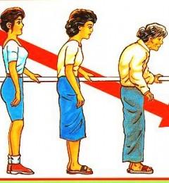 中医艾灸预防老人骨质疏松症