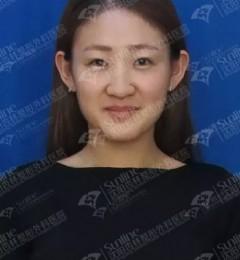 沈阳杏林整形安全吗,25岁的她,术后1年,看看究竟有多美?