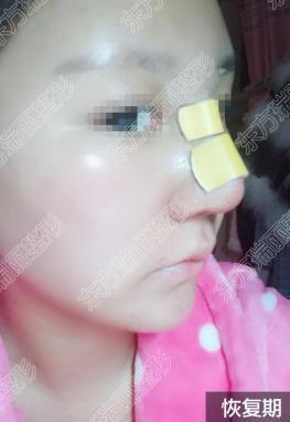 鼻整形3.0时代隆鼻与鼻修复后戴鼻夹的重要性