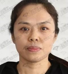 沈阳杏林整形怎么样,真不敢信这个大姐已经四十多岁!